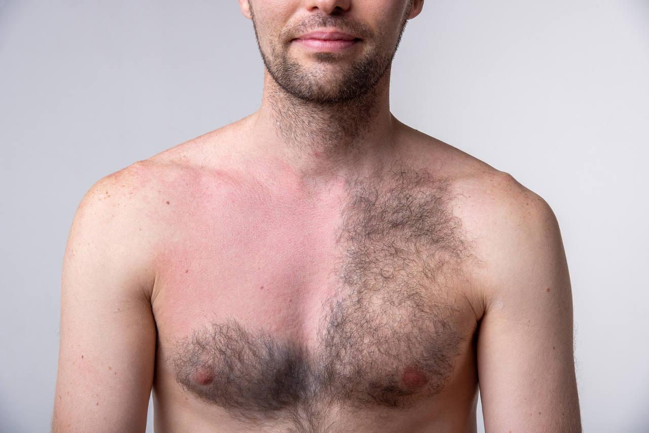 une greffe de cheveux avec des poils d'autres parties du corps est elle possible