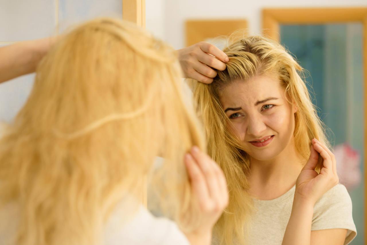 un exces de sebum peut impacter vos cheveux et causer une calvitie