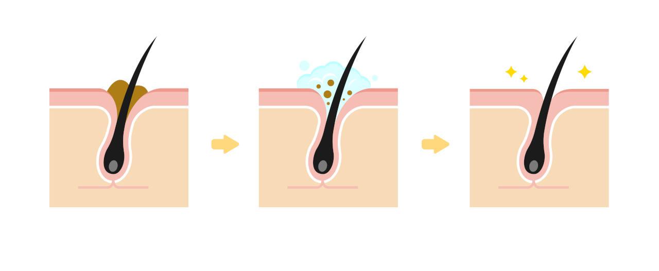 un gommage à l'aloe vera, bon remède contre les pores obstrués