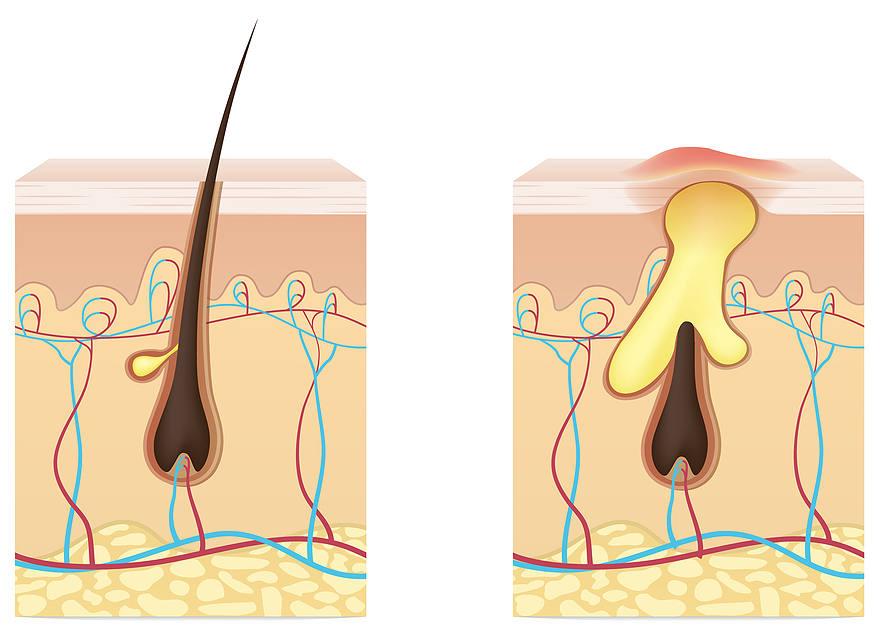 l'exces de sébum peut boucher les pores de vos cheveux et provoquer une pelade
