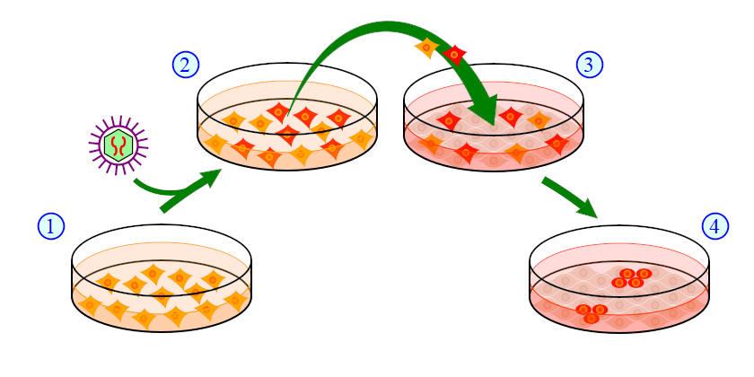 La greffe de cheveux effectuée avec des cellules souches