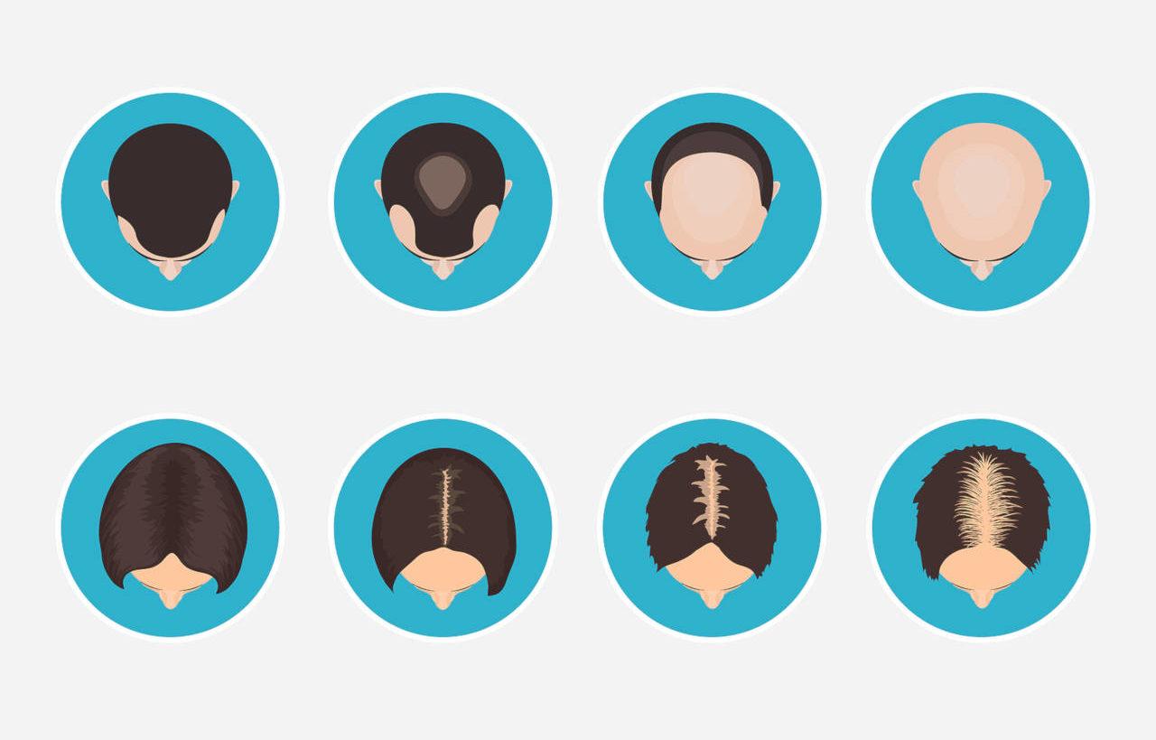 comment diagnostiquer une perte de cheveux