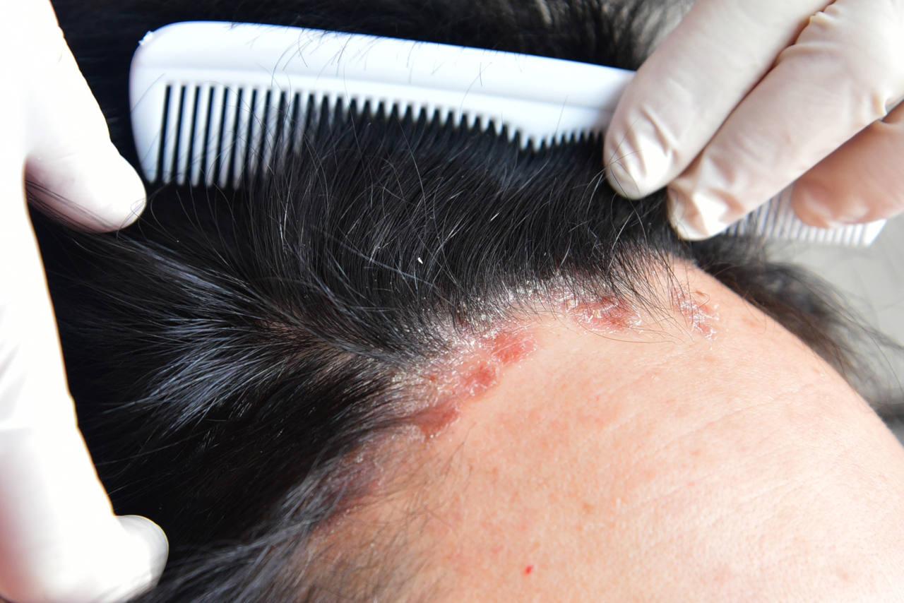 le psoriasis des cheveux est une maladie courante du cuir chevelu