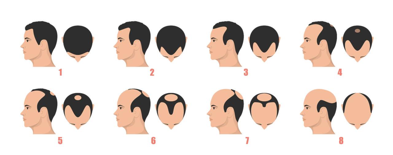 Apercu des étapes de la calvitie héréditaire chez les hommes