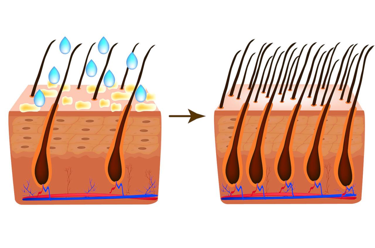 la biotine est un nutriment essentiel pour vos cheveux