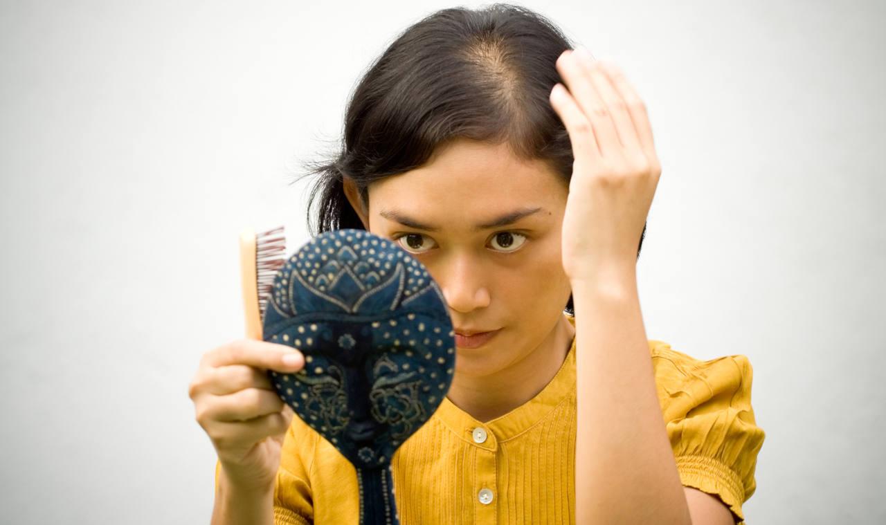alopécie femme découvrez nos solutions pour enfin retrouver vos cheveux