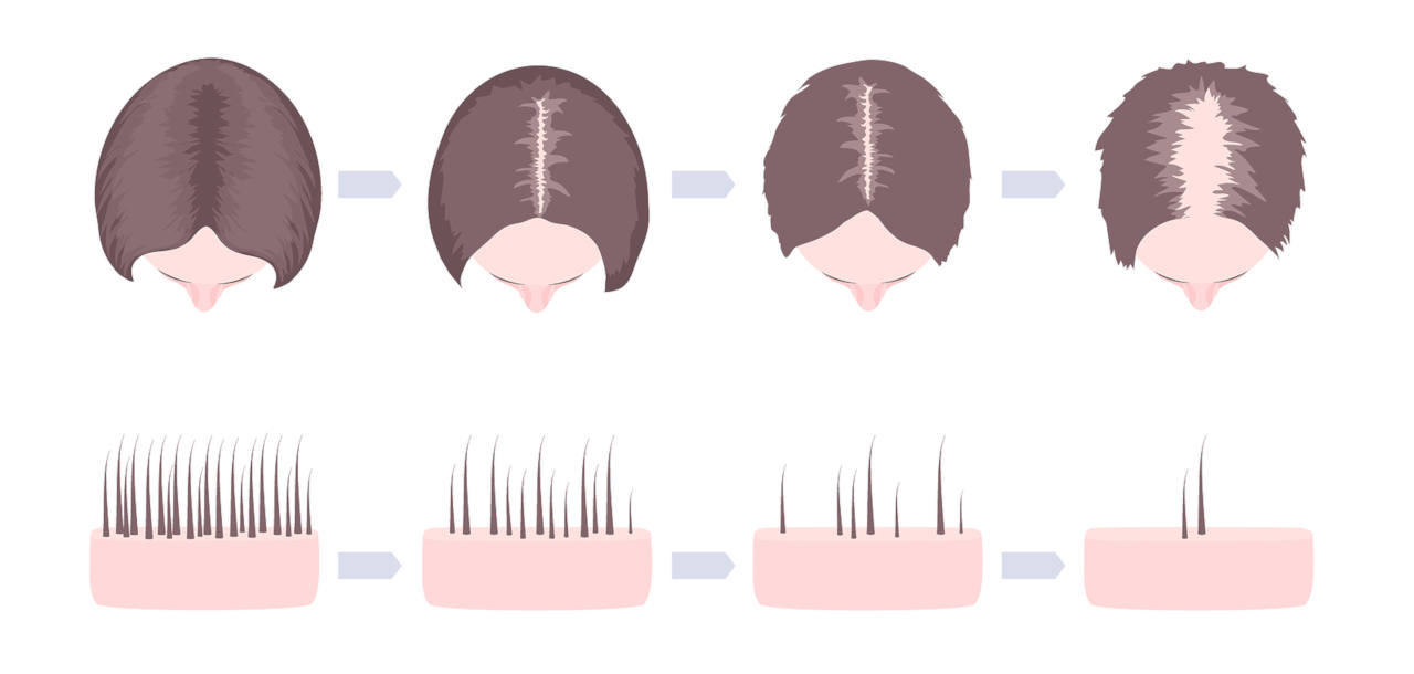 les symptômes de l'alopécie chez la femme diffèrent de ceux touchant les hommes
