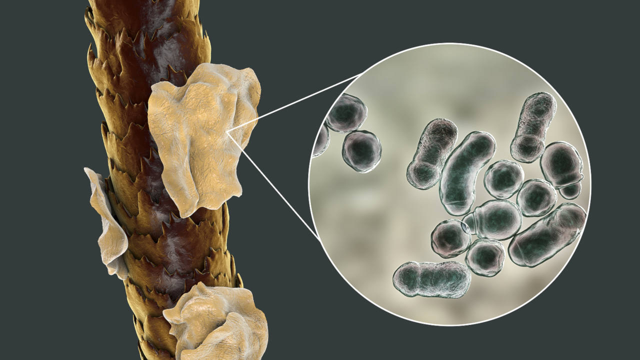 un champignon appelé malassezia est à l'origine des pellicules sur vos cheveux