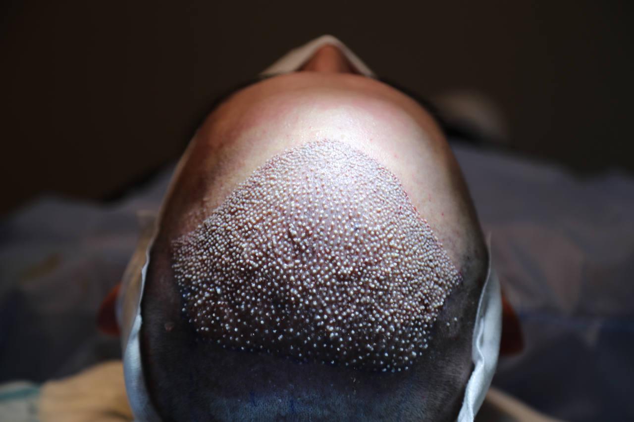 les greffons cheveux sont extraits de la nuque et implantés sur les zones chauves du crane