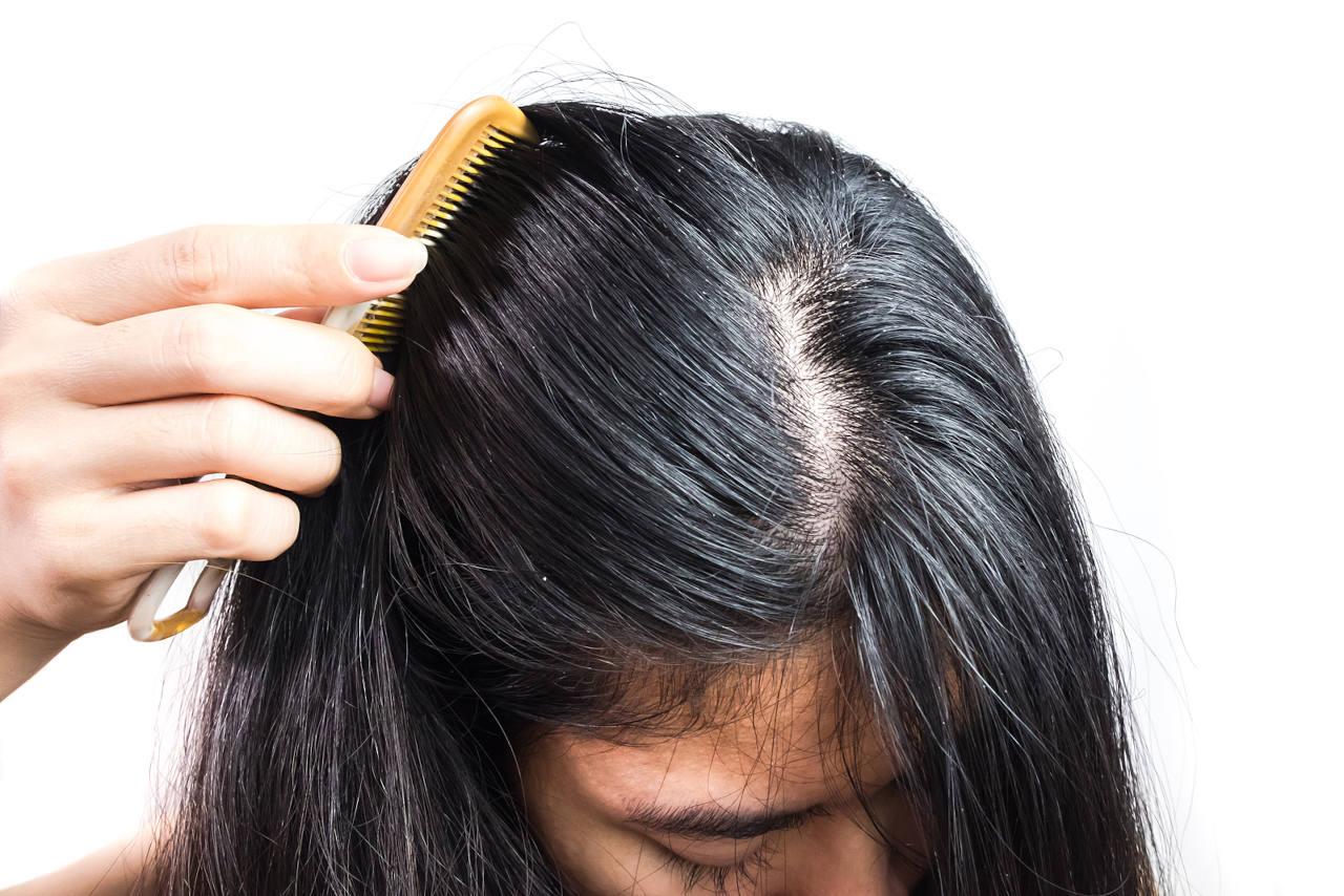 il existe des gélules pour les cheveux gras