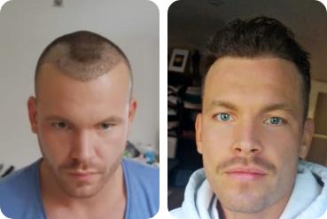 Avant et après une greffe de cheveux de 2 500 greffons chez un jeune homme