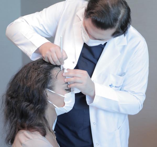 Dr. Balwi dessinant la ligne frontale d'une patiente avant une greffe de cheveux pour femme