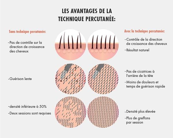 Illustration montrant les différences entre la greffe de cheveux avec et sans technique percutanée