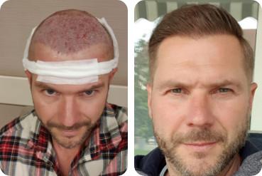 Homme au front haut ayant subi une greffe de cheveux, avant et après