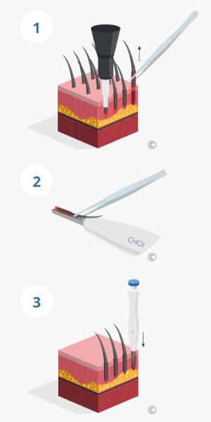 Illustration de la procédure d'implantation des greffons selon la méthode DHI