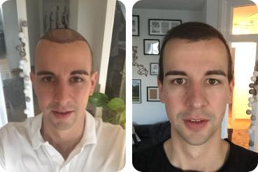 Jeune homme avant et après sa transplantation capillaire de 3 000 greffons en raison d'un front haut