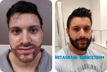 Jeune homme patient greffe de cheveux sur barbe avant après