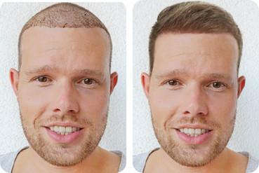 Jeune patient aux cheveux clairs avant et après sa transplantation capillaire de 3 000 greffons pour une ligne frontale fuyante