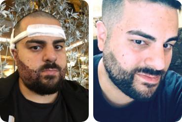 Jeune patient masculin avant et après sa greffe de barbe avec Elithair