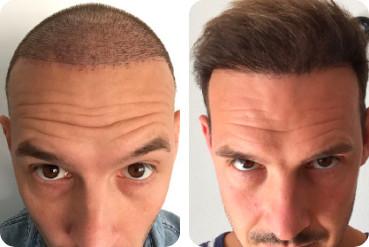 Patient Elithair avant et après un épaississement des cheveux par transplantation capillaire