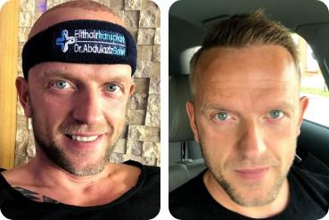 Patient blond, 40 ans, ayant subi une greffe de cheveux, avant et après