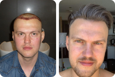 Patient de sexe masculin avant et après une greffe de cheveux de 2500 greffons pour un front dégarni