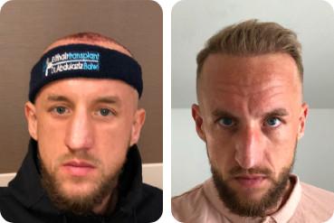 Patient de sexe masculin avec un front haut, avant et après sa greffe de cheveux