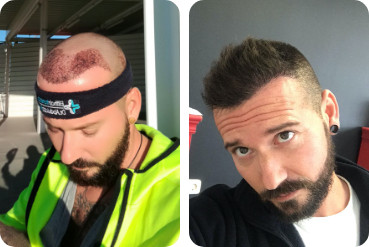 Patient satisfait avant et après une greffe de cheveux sur la ligne frontale