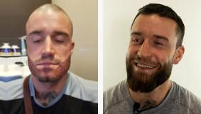 Patient souriant 1 an après la greffe de barbe