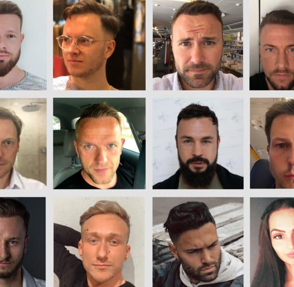 Photos de patients après une greffe de cheveux