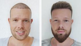 Patient heureux après sa greffe de barbe