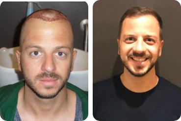 Portaits d'un jeune homme avant sa greffe de cheveux et après avec les cheveux épaissis