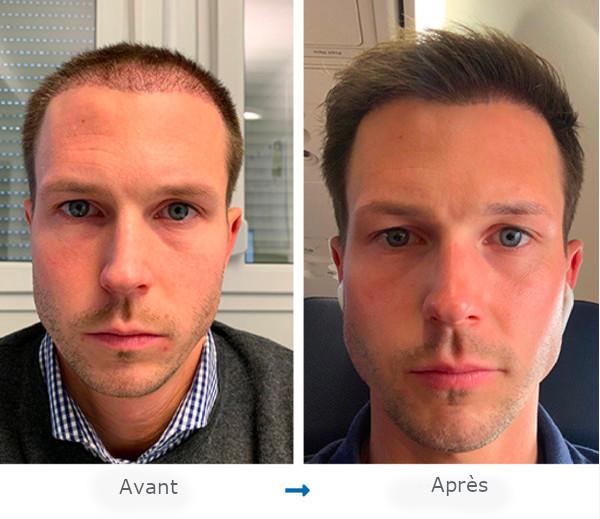 Portrait de face d'un patient Elithair avant et après sa greffe de cheveux pour un front haut