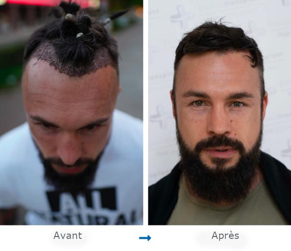 Portraits d'un patient Elithair avant et après une greffe de cheveux pour la correction de sa ligne frontale