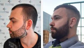 Résultat de la transplantation de poils de barbe