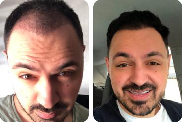 Traitement capillaire pour cheveux épais, photos pour comparaison avant / après