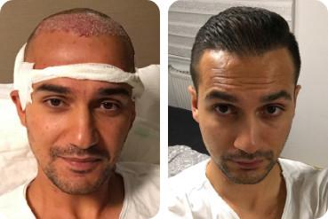 Transplantation capillaire de 3 000 greffons chez un homme au front haut, avant et après l'intervention