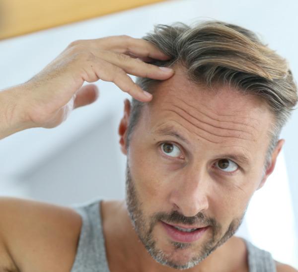 Un homme se regarde dans le miroir et pense à la greffe de cheveux.