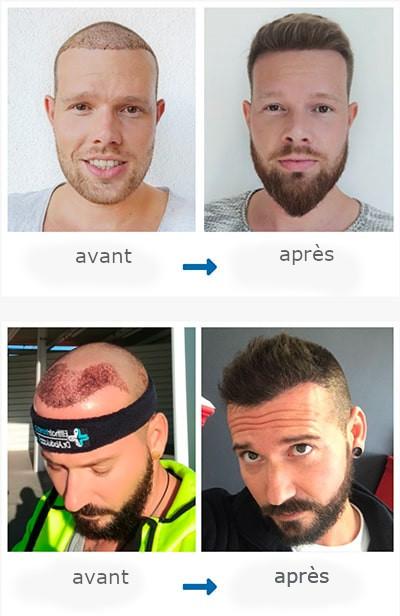 patients après la greffe de cheveux et à la fin de la repousse