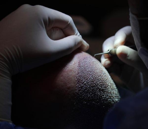 Gros plan sur un médecin prélevant un follicule pileux lors d'une transplantation capillaire FUE