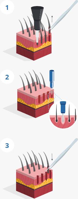 Illustration de la procédure de prélèvement des greffons selon la méthode FUE