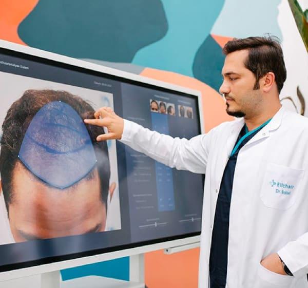 Dr. Balwi montrant la zone donneuse d'un patient