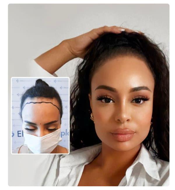 la greffe de cheveux pour femme est idéale pour corriger une ligne de cheveux en recul