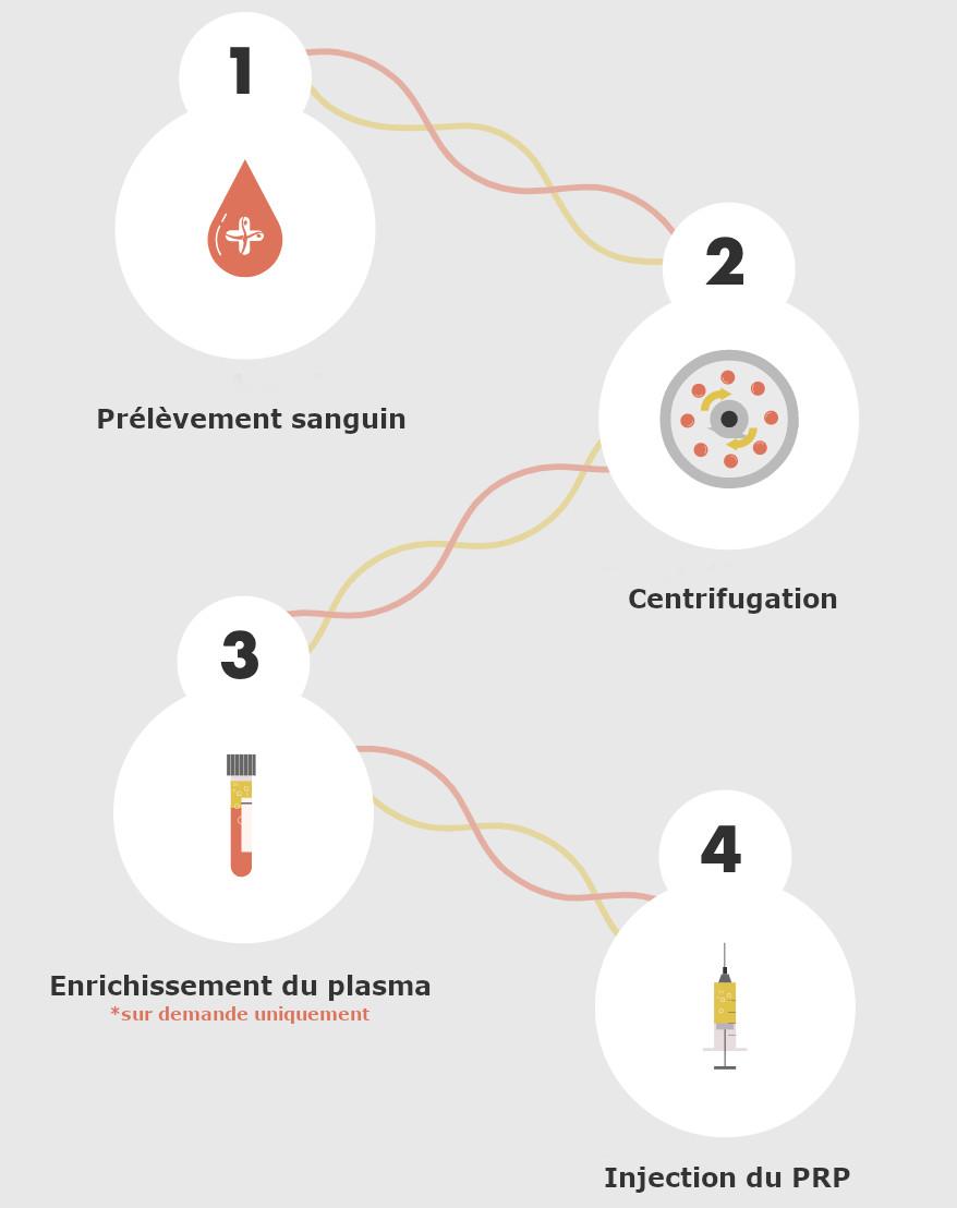 Infographie expliquant le processus d'extraction du plasma riche en plaquettes pour le traitement post greffe de cheveux par PRP