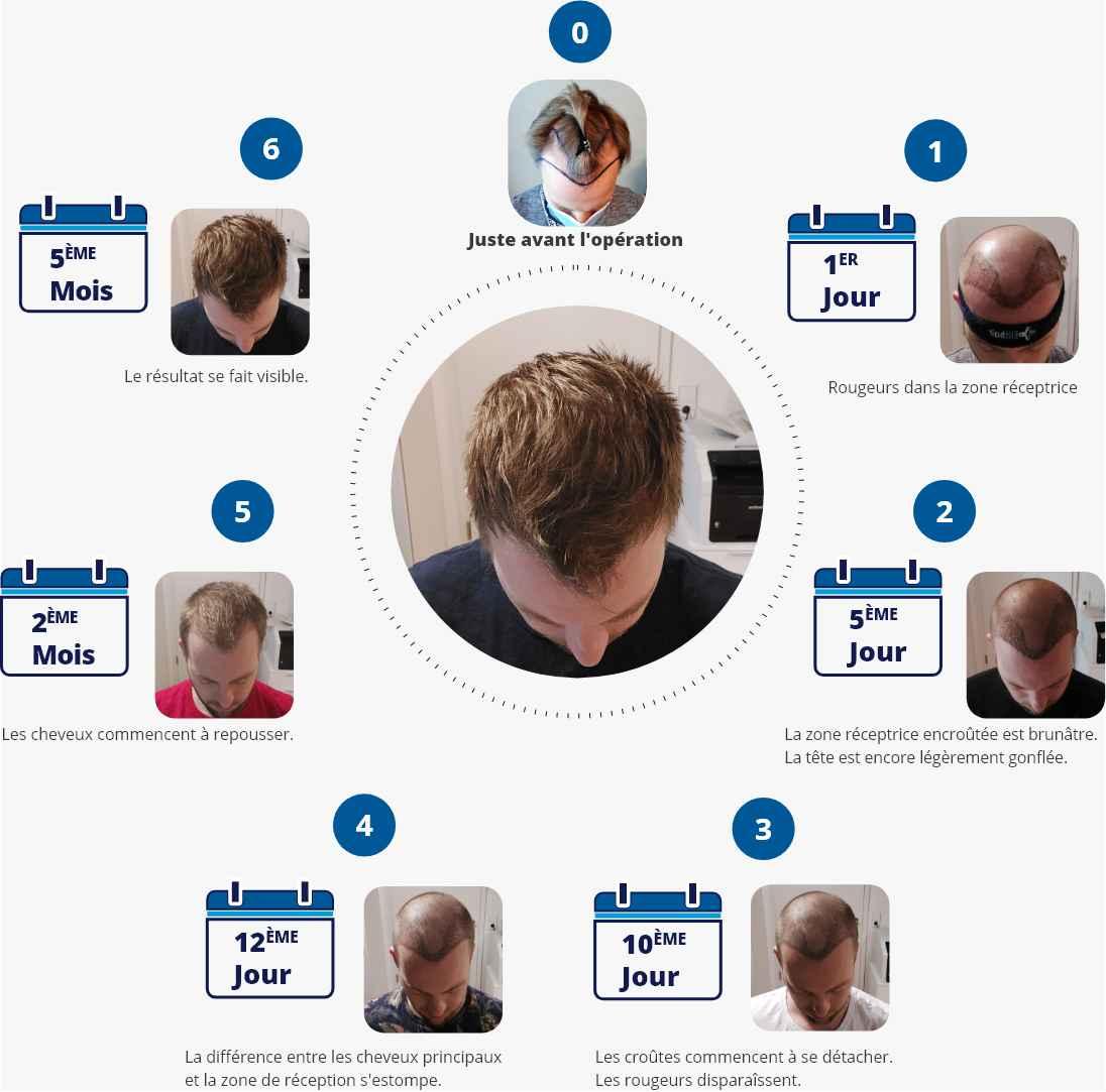 Infographie avec photos montrant les étapes du processus de guérison après une greffe de cheveux du premier jour au cinquième mois