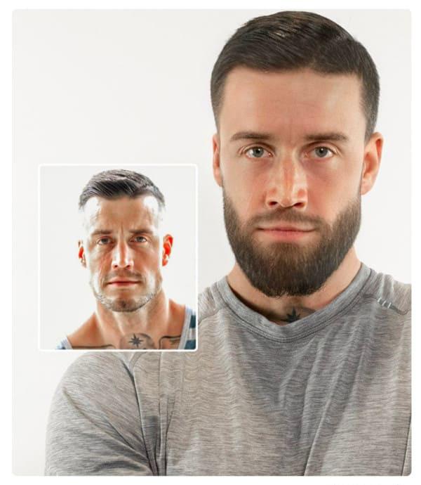 image d'un patient ayant fait sa greffe de barbe avec elithair