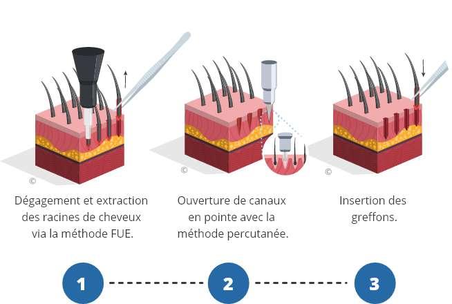 infographique montrant le processus d'une greffe de cheveux percutanée
