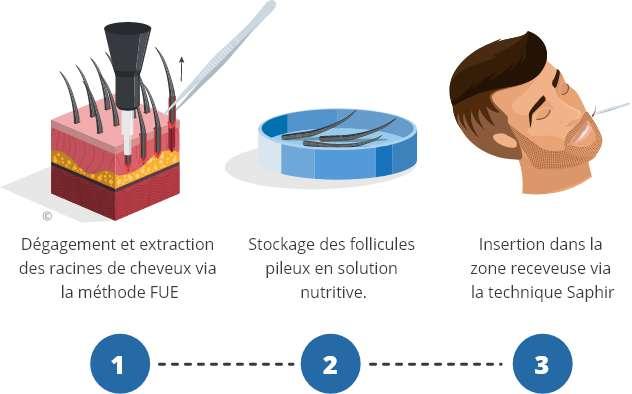 infographique montrant le processus d'une greffe de barbe