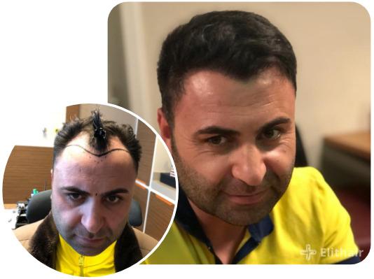 patient elithair s'étant fait greffer 4200 greffons avec la greffe de cheveux percutanée