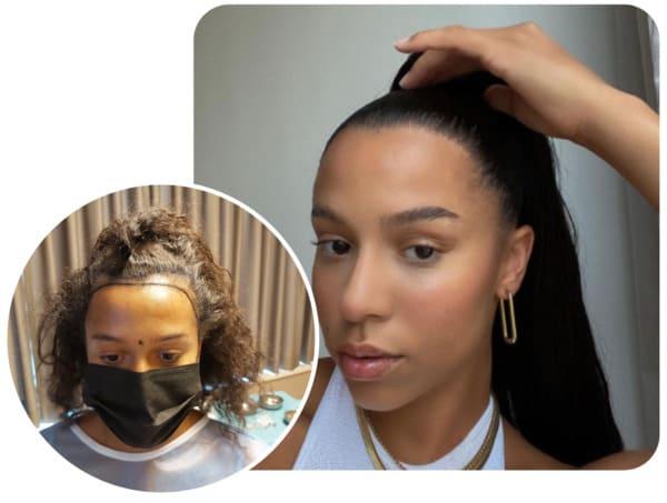 patiente elithair s'étant fait greffer 2700 greffons avec la greffe de cheveux pour femme